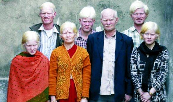 familia-albina
